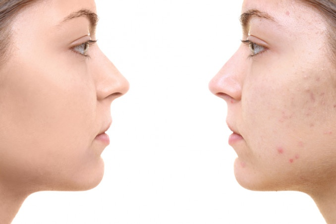 3 Tips To Eliminate Acne Marks