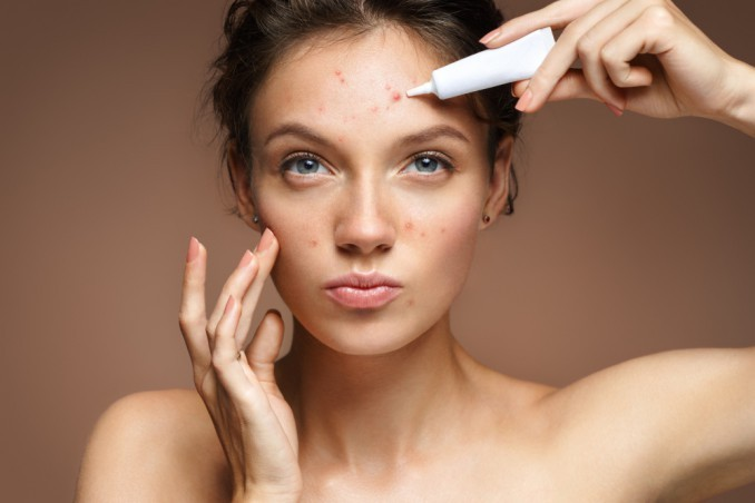 Winter Acne, What Is It And How Is It Treated?